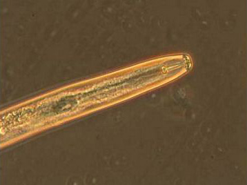 Plant parasitic nematode [photo]
